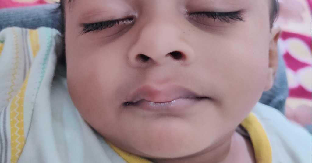 My baby has pimples on lips due to which her mouth is ...