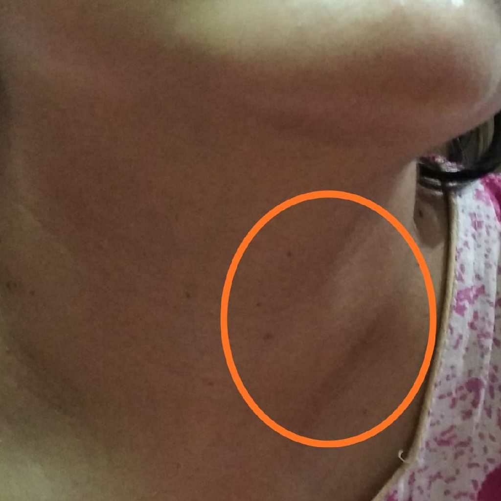 I Have Developed A Lump In Left Side Of My Throat After Delivery Consulted An Ent He Said Its Thyroid Gland Swelled Due To Increase Demand Of The Body I Don T Have
