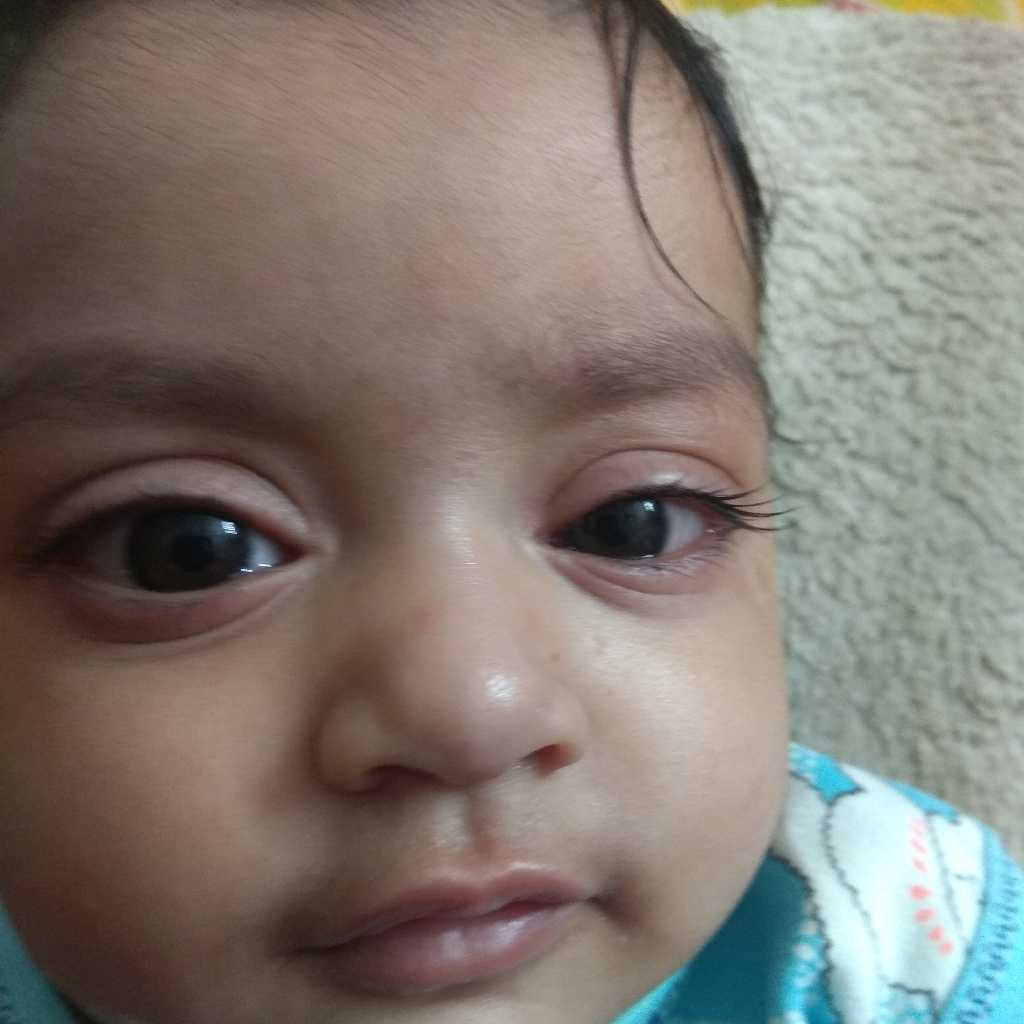 #AskTheExpert My baby is one year..he is suffering eye ...