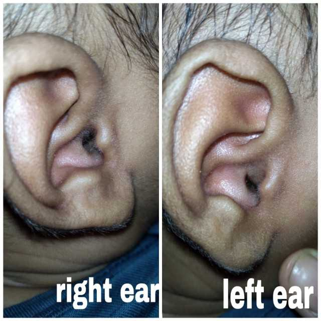 My 9+27days Old Baby's .....left Cheek Near The Ear Is