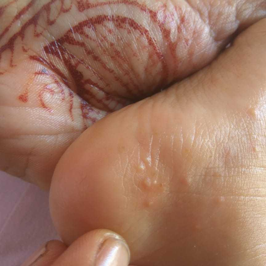 Parentingclinic My Daughter Has These Types Of Blisters On Her Foot And Hands Firstcry Parenting